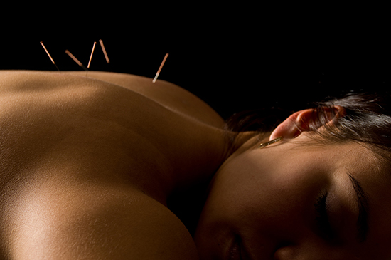 Trigger Point Dry Needling in Denver
